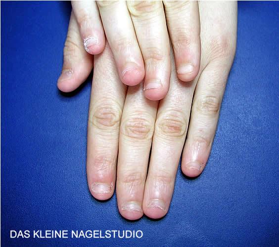 Als man kann gribok des Nagels heilen